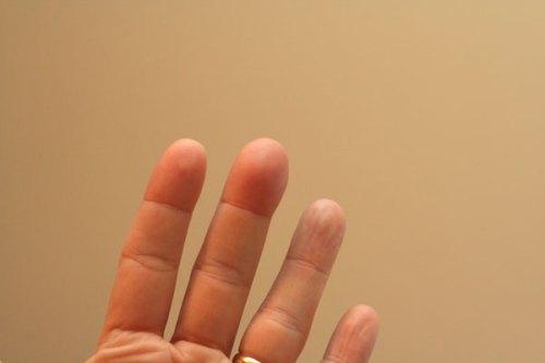 my-sore-finger-2